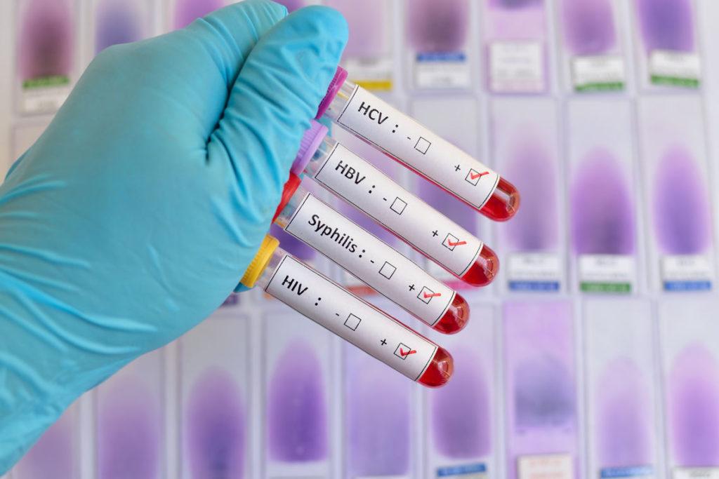 сдать кровь на ЗППП